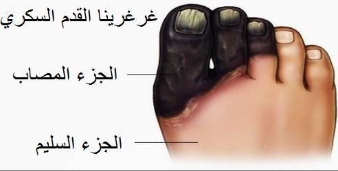 -القدم-السكري.jpg