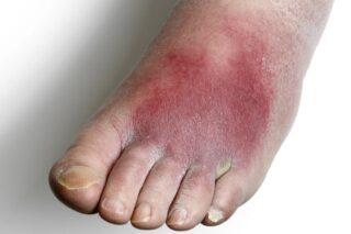 اعراض القدم السكري