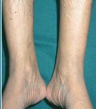 القدم السكرى بالصور