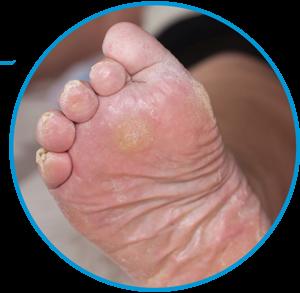 diabetic-foot-300x293-1.png