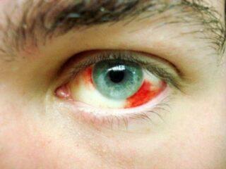اوعية دموية في العين