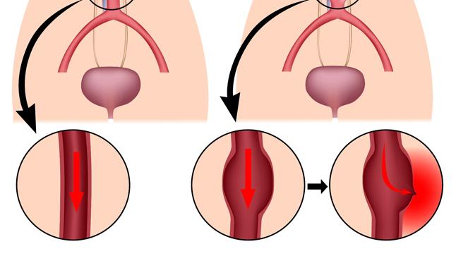 aneurisma-aortico.jpg